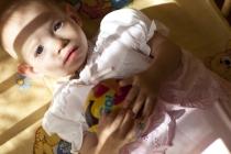 «Особый ребенок ищет семью»: Вирус иммунодефицита человека (ВИЧ)